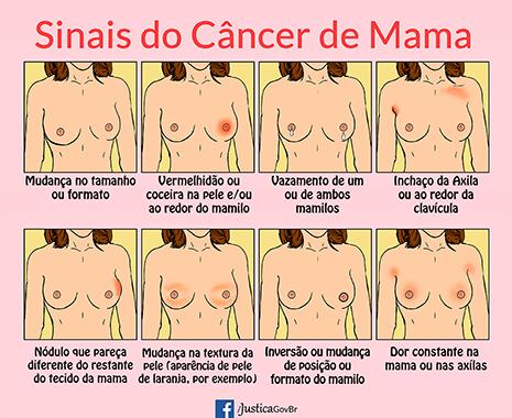 cancer_de_mama